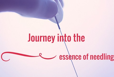 All about the use of acupuncture needles in Healthcare